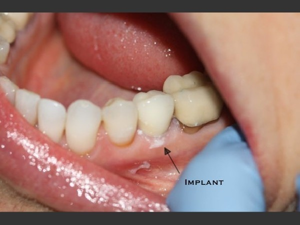 Dental Implant 5/5: An implant retained porcelain crown.