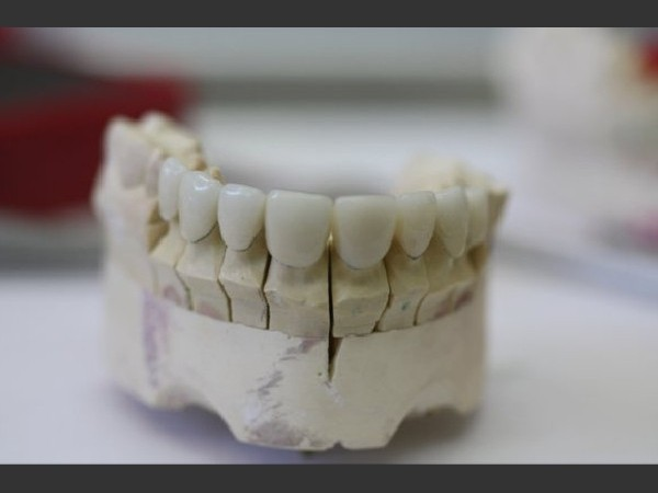 Porcelain Veneers 3/5: Porcelain Veneers on model.