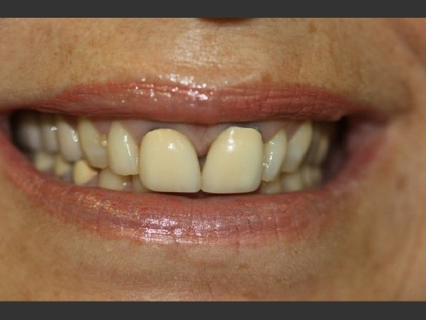Esthetic Crowns 1/3: Before