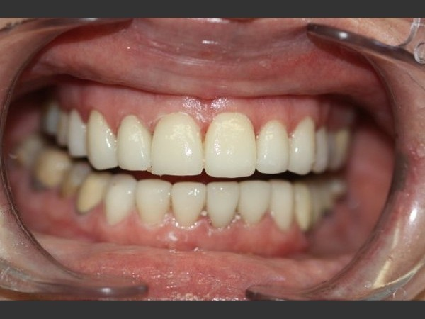 Porcelain Veneers 4/5: After