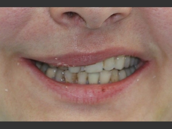 Porcelain Veneers 1/5: Before