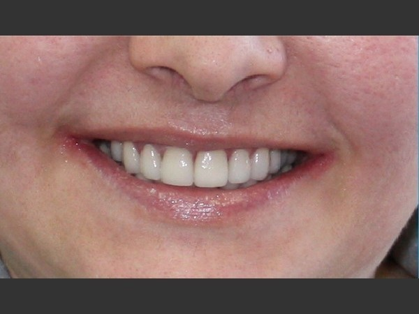 Porcelain Veneers 5/5: After